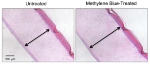 These cross-section images show three-dimensional human skin models made of living skin cells. Untreated model skin (left panel) shows a thinner dermis layer (black arrow) compared with model skin treated with the antioxidant methylene blue (right panel). A new study suggests that methylene blue could slow or reverse dermal thinning (a sign of aging) and a number of other symptoms of aging in human skin. Image credit: Zheng-Mei Xiong/University of Maryland (Click image to download hi-res version.)