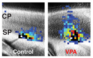 These images of mouse brains compare laser scanning photostimulation maps of all the neurons connected to one central neuron in control mice (left) vs. mice dosed with valproic acid (VPA) to induce autism-like symptoms (right). The researchers focused on neurons in the subplate (SP) region, directly below the developing cortex (CP, or cortical plate), which controls perception and behavior. The central neuron is marked in white, and each colored square represents a neuron that has a direct synaptic connection to the central neuron. Reds and oranges represent stronger connections compared with greens and blues, indicating that subplate neurons in VPA-treated mice form numerous strong connections early in development. Image Credit: Daniel Nagode/Patrick Kanold (Click image to download hi-res version.)