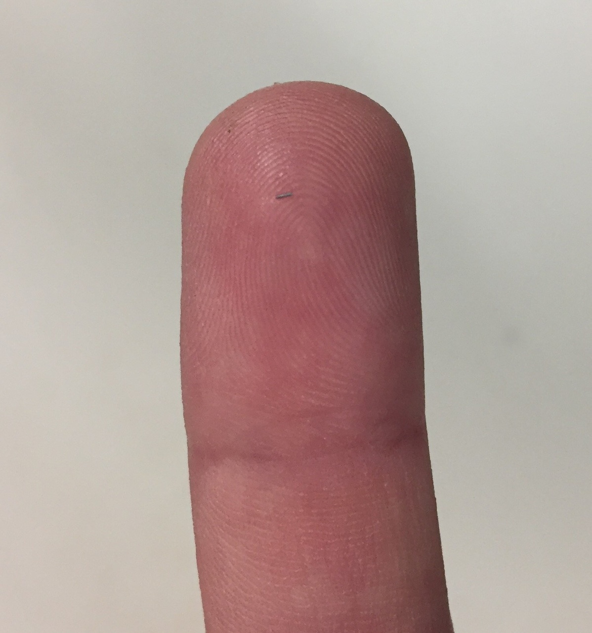 Coded-wire tag on the tip of my finger.