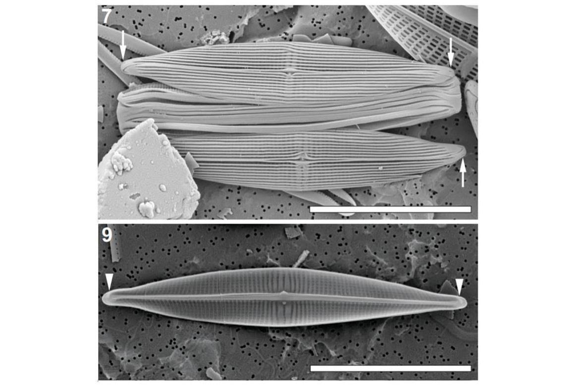 The Browder diatom (Proschkinia browderiana).