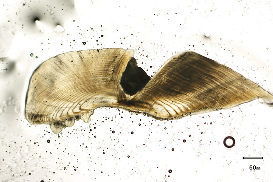 Section of a fish otolith or ear bone